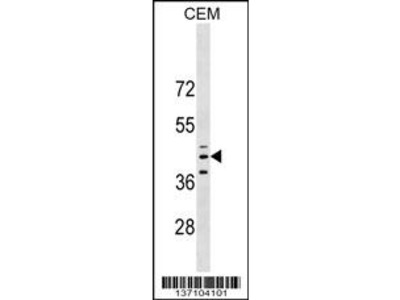 QPCT Antibody (C-term)
