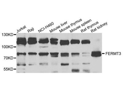 FERMT3 Polyclonal Antibody