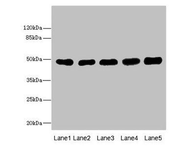 Rabbit anti-human Tubulin beta-3 chain polyclonal Antibody
