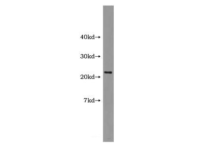HBXIP Antibody