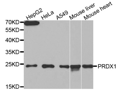 PRDX1 Antibody