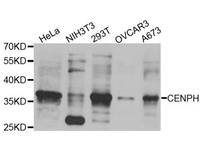 CENPH Polyclonal Antibody