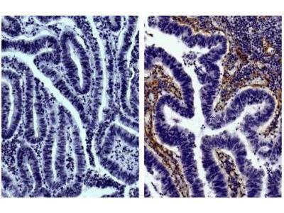 Goat Polyclonal Collagen IV alpha 1 Antibody