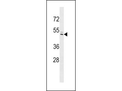 IFI44L Antibody (C-term)