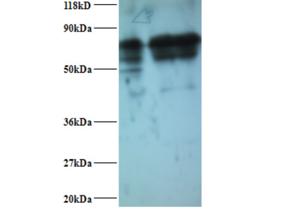 Rabbit anti-human Inosine-5'-monophosphate dehydrogenase 2 polyclonal Antibody, Biotin conjugated