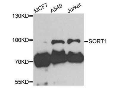 SORT1 Polyclonal Antibody