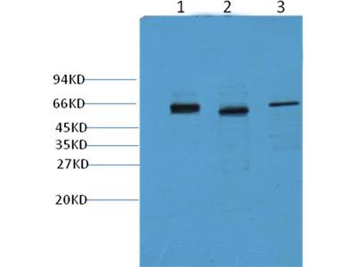 CK7 Mouse Monoclonal Antibody