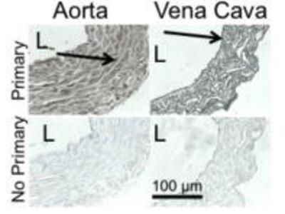 Noradrenaline (Arterenol)