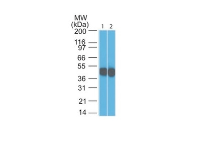 Cytokeratin 18