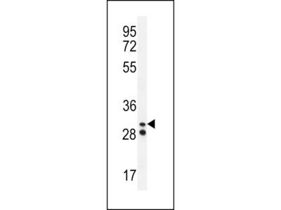 Neutrophil elastase Antibody (N-term)