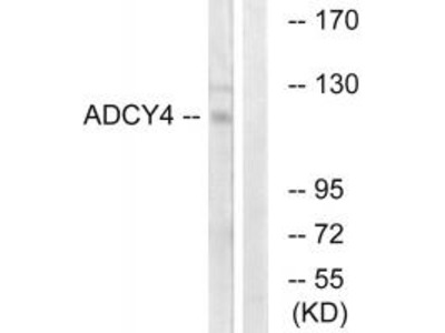 ADCY4 Antibody