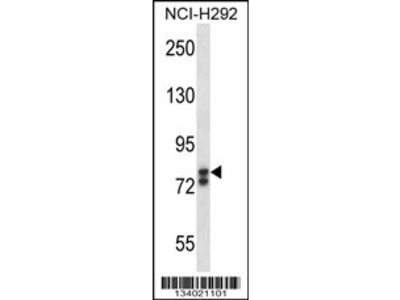 SOX30 Antibody (Center)