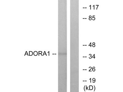 ADORA1 Antibody