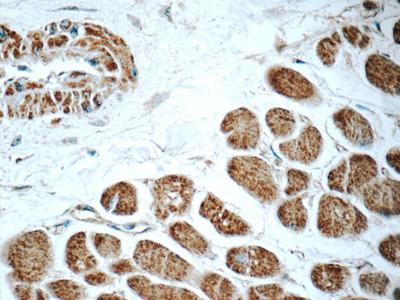 RAB31-specific antibody