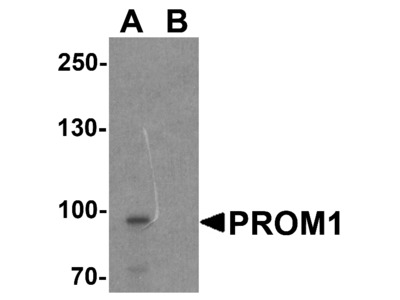 PROM1 Antibody