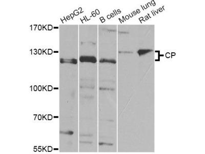 CP Polyclonal Antibody