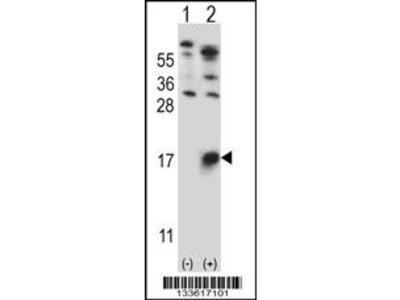 GYPB Antibody (Center)