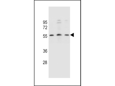 KCNK18 Antibody (Center)