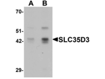 SLC35D3 Antibody