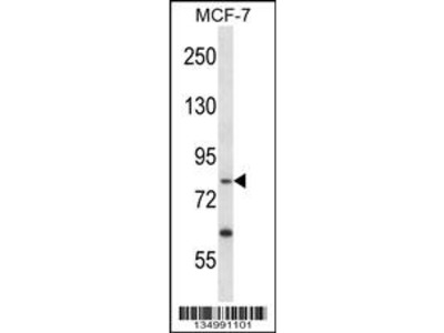 PRKRIR Antibody (N-term)