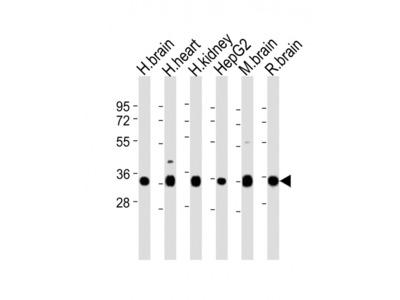 KCNMB2 Antibody (N-term)