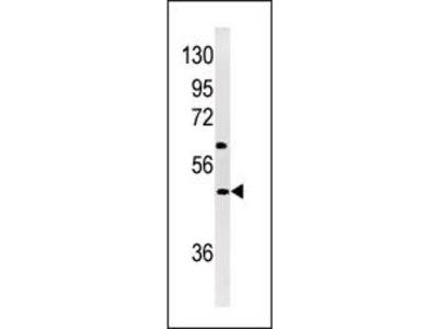 NP1 (Nptx1) Antibody (Center)