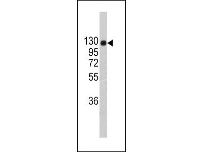 COL2A1 Antibody (C-term)
