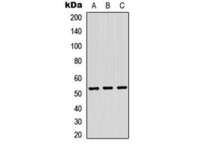 Anti-TRMT11 Antibody