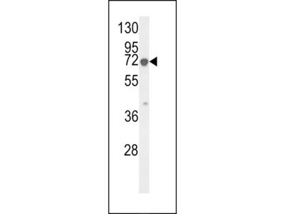 KRT9 Antibody (Center K317)