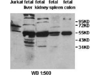 Anti-IL31RA Antibody