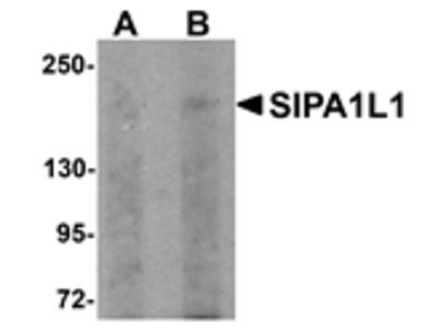 SIPA1L1 Antibody