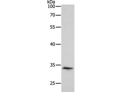 RCHY1 Antibody