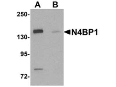 N4BP1 Antibody