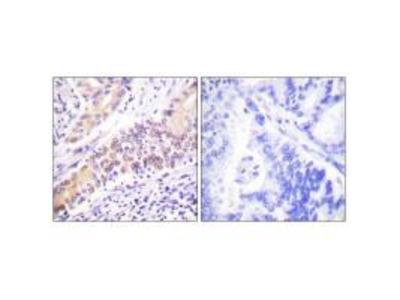 Topoisomerase II beta Antibody