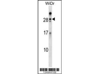 AZU1 Antibody (Center)