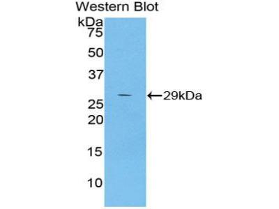 Polyclonal Antibody to Alpha-2-Microglobulin Like Protein 1 (a2ML1)