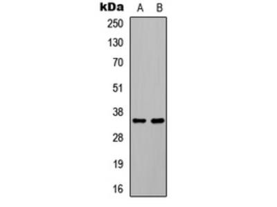 Anti-C/EBP beta (pT235) Antibody