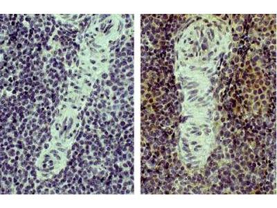 CD4 Antibody (CT-4)