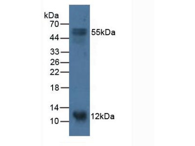 Polyclonal Antibody to S100 Calcium Binding Protein A14 (S100A14)