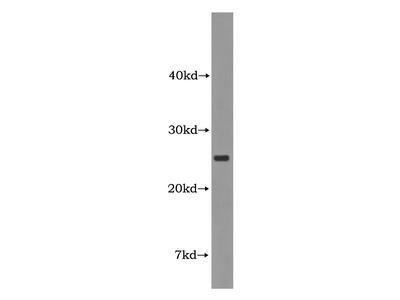 CIDEA Antibody
