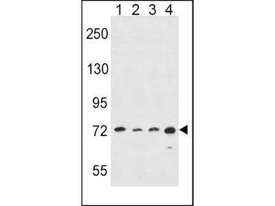 ALOX15 Antibody (C-term)