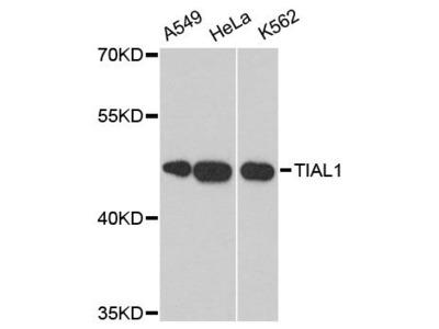 TIAL1 Polyclonal Antibody