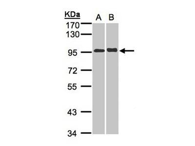 IL-12 Receptor beta2 antibody