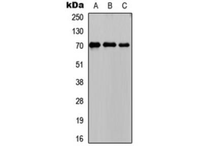Anti-PCK1 Antibody