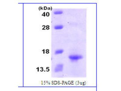 Human XCL1 / Lymphotactin Protein