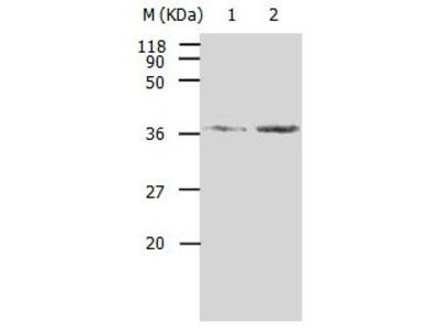 AKR1B1 Antibody