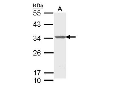 ALY antibody