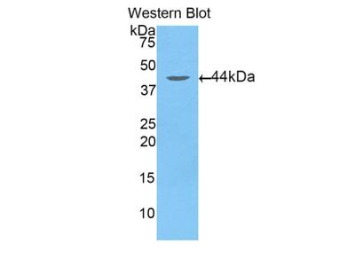 Polyclonal Antibody to Aspartate Aminotransferase 2 (AST2)