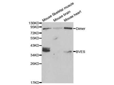 BVES Antibody
