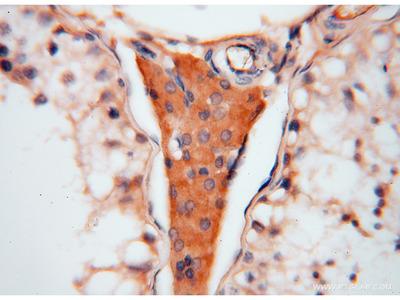 ATP6V1C2 antibody